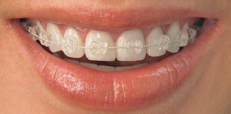 ondontoarauca-ortodoncia-en-arauca